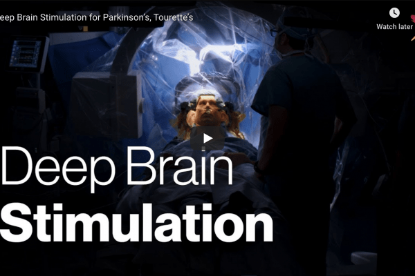 Deep Brain Stimulation video thumbnail