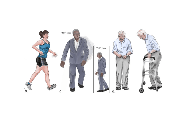 """New Parkinson's representation showing a young, healthy woman with only a few symptoms; a man who is a little older with more symptoms (illustrating his """"on"""" time, when medications are successfully treating symptoms, and """"off"""" time when they aren't); and an older man with more pronounced and advanced symptoms of the disease."""